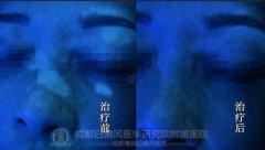 CDTV-2:告别脸部大面积白癜风,重获健康与美貌
